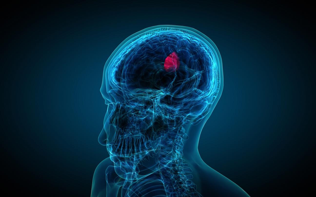 Demiyelinizan beyin hastalığı: tedavi, tahminler, belirtiler