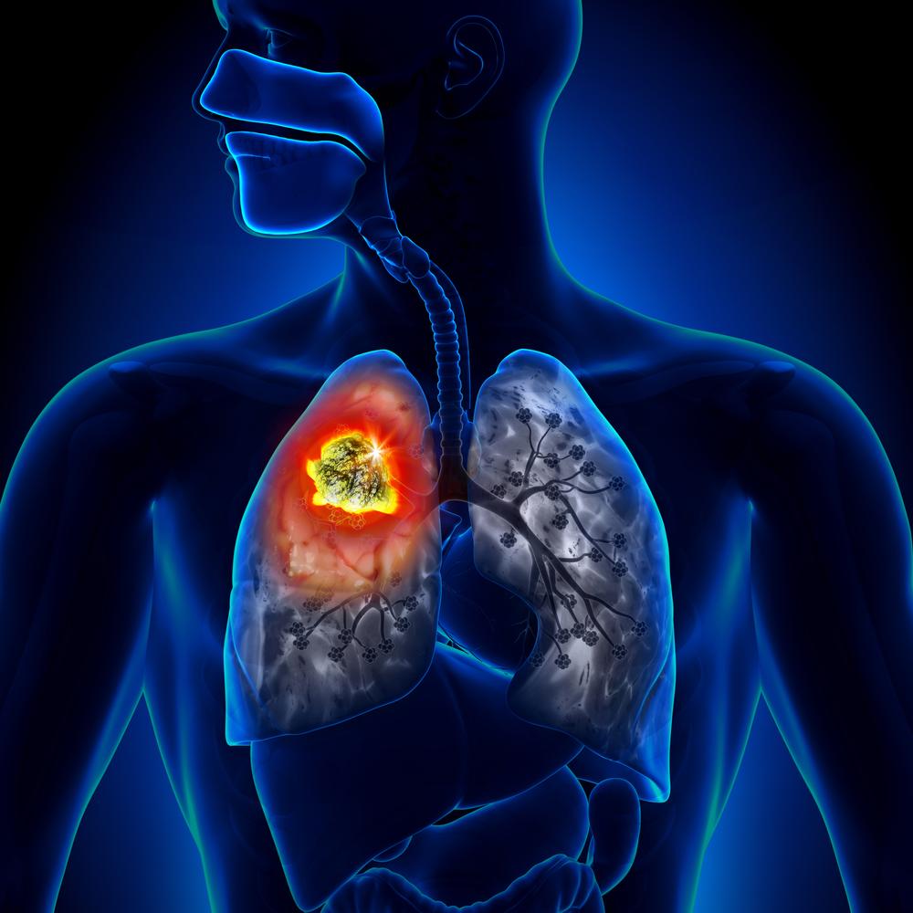 Akciğer Kanserine Karşı Mutlaka Tüketilmeli – 1