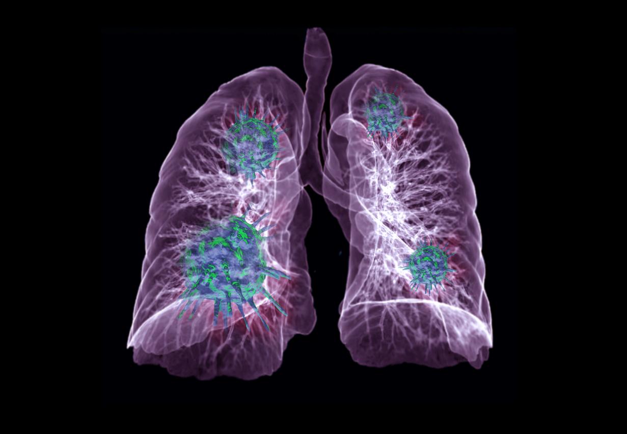 iStock 1218489253 - Akciğer Kanseri Nedir?