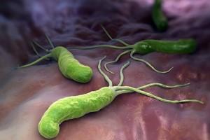 Gastrik lezyonları olan hastalarda mide kanseri riski daha mı yüksek?