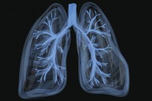 Akciğer Kanseri Mutasyonları Irklar Arası Farklılık Gösteriyor