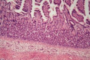 İBH'de Prostat Kanseri Riski Oluşur Mu?