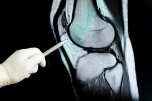 Karaciğer Yağlanması ile Osteoporotik Kırıkların İlişkisi Araştırıldı