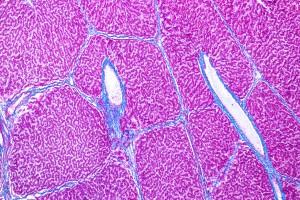 Alkol-İlişkili Karaciğer Hastalığı ve Karaciğer Transplantasyonu