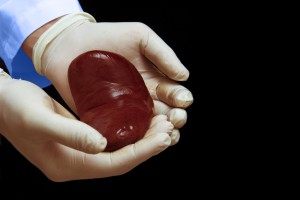 Daha Erken Canlı Donör Böbrek Değerlendirmesinin Sonuçları Ne Olur?