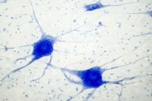Fibromiyalji Etiyolojisi Sır Olmaktan Çıkıyor