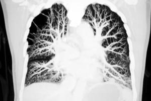 Akciğer Kanseri Taramasında Yalancı Pozitifliğin Azaltılmasında Yapay Zeka Kullanımı