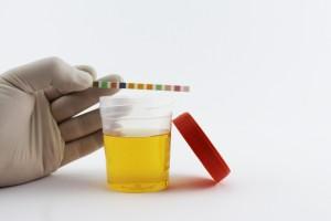 Preeklampsi İçin Yeni Geliştirilen Basit Bir İdrar Testi