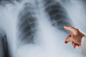 Akciğer Kanseri Taramasında Düşük Doz Tomografi Taraması