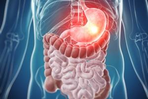Mide Kanserinde PDL1 Ekspresyonu