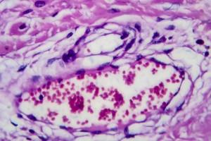 Non-Hodgkin Lenfoma ve Enflamasyon Belirteçleri