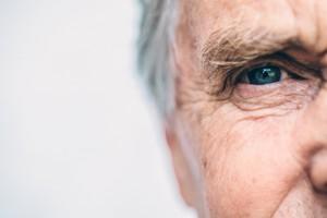 Alzheimer Hastalığında Retina Mikrovasküler ve Nörodejeneratif Değişiklikler