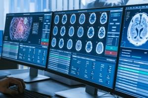 Klinik İzole Sendromu Anlamak İçin Yeni Bir Yöntem