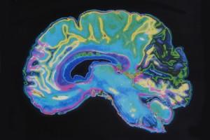 RRMS'li Hastalarda Leptomeningeal Kontrast İyileşmesi Fokal Kortikal İncelme ile İlişkili