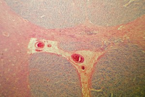 Kanser Hastalarında Ağrı Kesicileri İntratekal Olarak Vermek Mantıklı Mı?