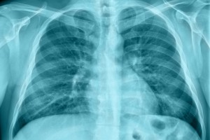 Derin Öğrenmeyle Akciğer Grafilerinden Uzun Dönem Mortaliteyi Değerlendirme