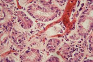Kanser Hastalarında Pulmoner Emboli Nasıl Taranmalı?