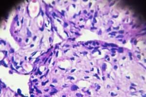 Hedeflenebilir Yumurtalık Kanseri Altkümelerini Tanımlamak için Kapsamlı Genomik Profil İncelemesi