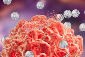 Tümör Lizis Sendromu Hakkında Güncel Görüşler