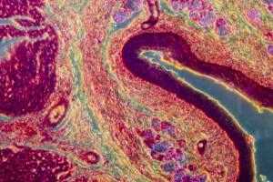 İleri Skuamöz Hücreli Akciğer Kanserinde PD-1 / PD-L1 İnhibitörlerinin Etkililiği