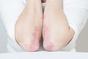 Sistemik Lupus Eritematozusun İmmünopatogenezine Yeni Bakış Açıları