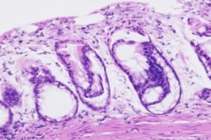 Kolorektal Kanserde Antikanser Bağışıklığını Değerlendirmek için Sitolitik Aktivite Skoru