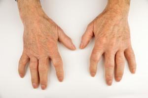 Romatoid Artritli Hastalarda Biyolojik Tedavi Kesme Stratejileri ve Sonuçları