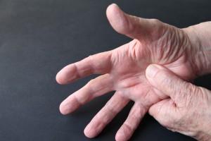Hastalık Aktivitesi Düşük Hastalarda RA için Tümör Nekroz Faktör Engelleyici Ajanları Azaltma ve Sonlandırma