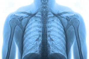 Akciğer Kanseriyle Mücadelede Yeni Zaferler