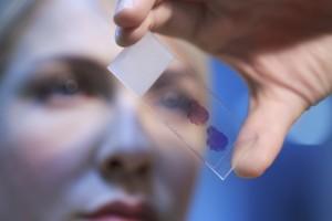Bir Kan Testi ile Birden Fazla Kanser Türü Saptanabilir Mi?