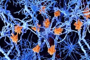 Multipl skleroz tedavisini iyileştirmek için tanımlanan anahtar gen
