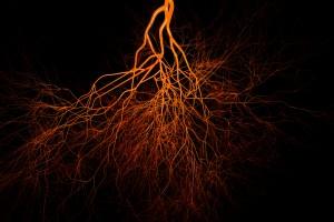 3D Mikrodamar Modeli Meme Kanserinde Damar Oluşumunun Dinamiklerini Ortaya Koyuyor