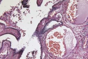 Prostat Kanserinin Ikincil Tümörlere Nasıl Neden Olduğuna Dair Yeni Bilgiler
