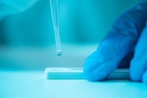 SARS-CoV-2 Enfeksiyonunda IgM Antikorları; Gerçekten Değerli mi?