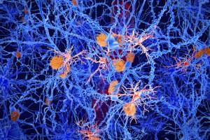 Multipl Skleroz Nöroinflamasyonunda Anahtar Faktör