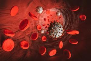 COVID-19 ve Trombotik Komplikasyonlar