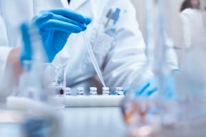 Serum Kitinaz-3 Benzeri 1 Proteini, ANCA İle İlişkili Vaskülitte Hastalık Aktivitesini Değerlendirmek İçin Yararlı Bir Biyobelirteç Olabilir Mi?
