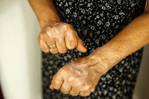 COVID-19 ve Otoimmün Hastalıklar Arasındaki İlişki