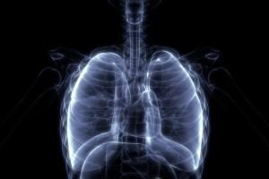 İdiyopatik Pulmoner Fibrozis`ten Şüphelenilen Hastalarda Pratik Görüntüleme Yorumu