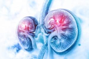 Perinefrik Boşluğun Birincil ve İkincil Hastalıkları