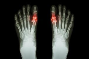 COVID-19 Döneminde Romatoid Artritin Erken Tanısında Yaşanan Zorluklar
