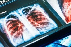 Hızlı Kızılötesi Görüntüleme Temelli Yapay Zeka Akciğer Kanserinde Tümör Tiplerini Tanımlıyor